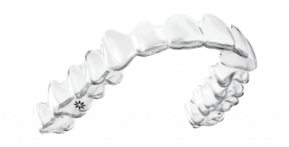 Invisalign - transparente Zahnschienen