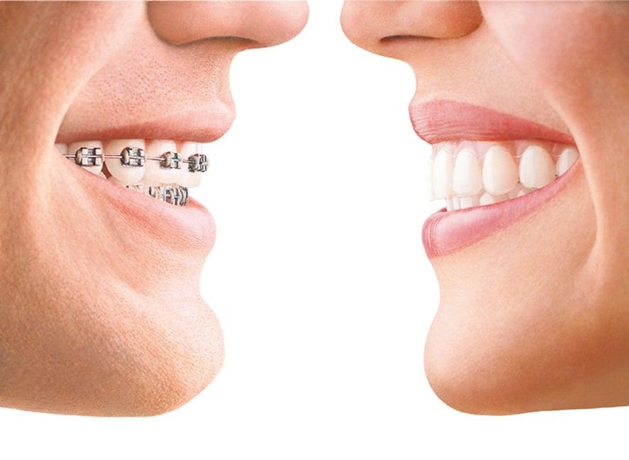 Zahnkorrektur: Herkömmliche feste Zahnspange gegenüber Invisalign®-Zahnschienen